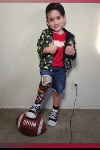 boy-gets-chiefs-decorated-prosthesis