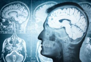 secondary-infection,-inflammation-worsens-alzheimer's-disease,-study-says
